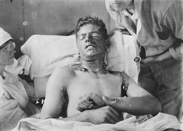 Канадский солдат после отравления ипритом, около 1917-1918гг. Фото: Library and Archives Canada