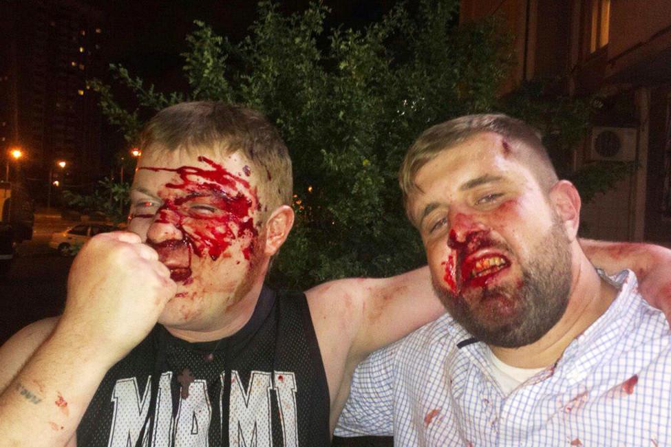 Избивший журналиста НТВ напраздновании Дня ВДВ оказался активистом движения «Сорок сороков»