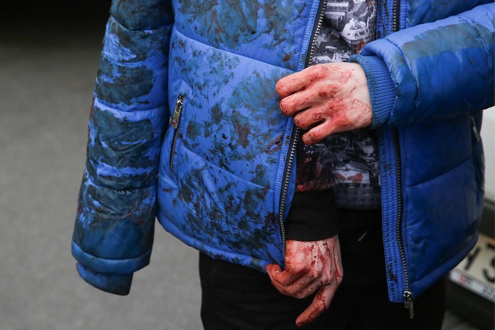 Пострадавший втеракте вметро вСанкт-Петербурге. Фото: Антон Ваганов/ ТАСС