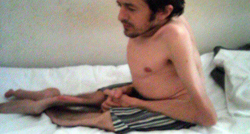 Медкомиссия отказалась выпускать изколонии вКалмыкии заключенного сболезнью «хрустального человека»