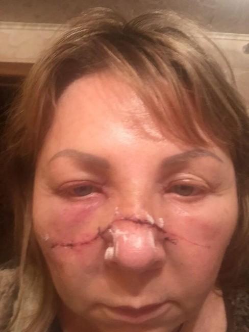 Наталья Надлер после нападения. Фото: пресс-релиз «Яблока»