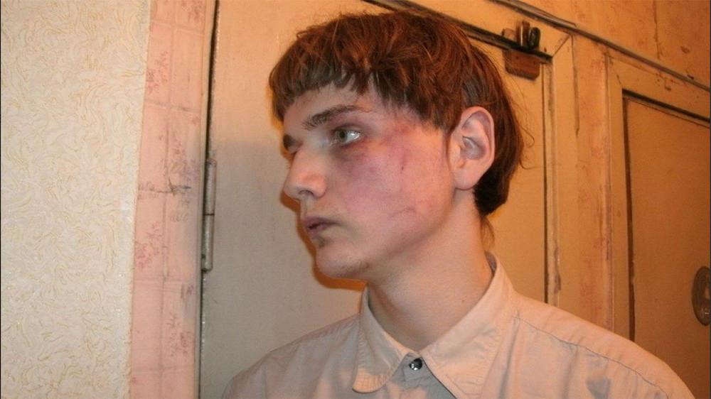 Полиция избила активиста «Артподготовки» иотправила его впсихиатрическую клинику