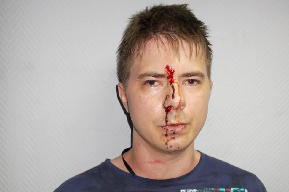 «Пробороздив лицом стену, ударился облавочку»: избитого полицией мужчину судят заизбиение полицейского