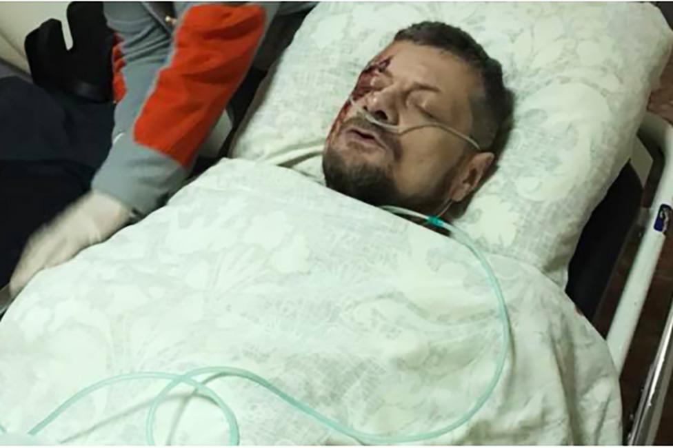 Игорь Мосийчук вбольнице после покушения. Фото: Facebook