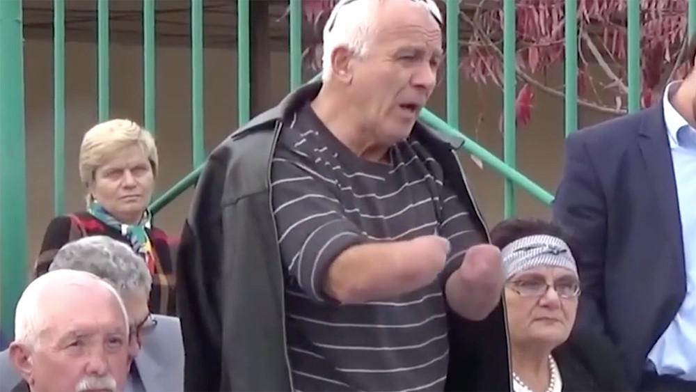 ВНальчике завели дело онападении наполицейского вотношении активиста, укоторого нет кистей рук