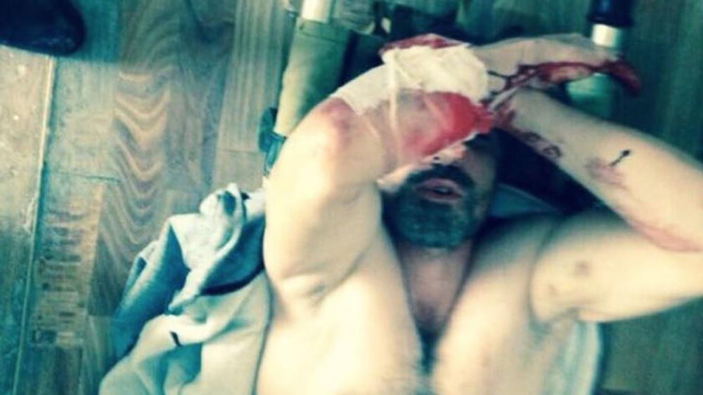 Полицейские пытали сына замглавы Рутульского района Дагестана