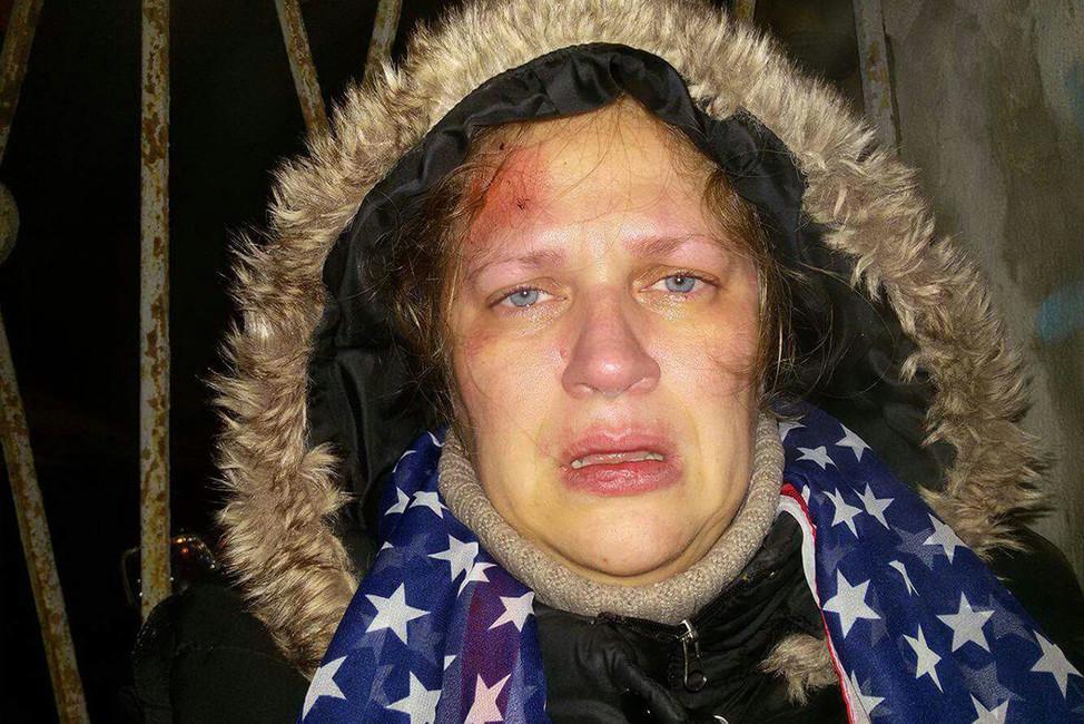 Ксения после избиения. Фото изличного архива